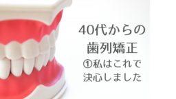 40代からの歯列矯正①きっかけ